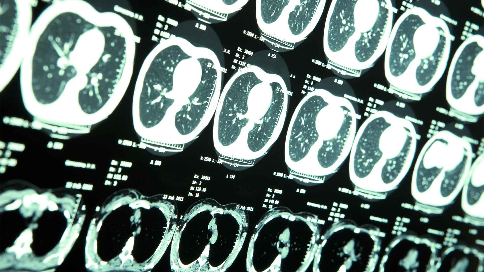 Neuroxeirourgio_Ogkos